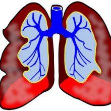 Thema Lungenerkrankungen